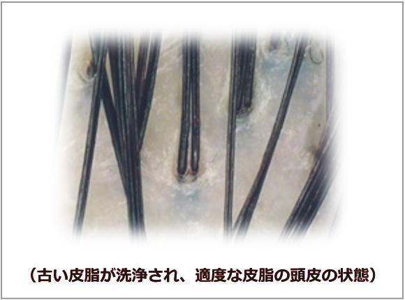 適度な皮脂の頭皮の状態