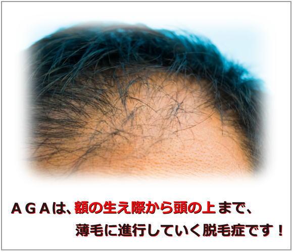 AGAは額の生え際から頭の上まで薄毛にする脱毛症