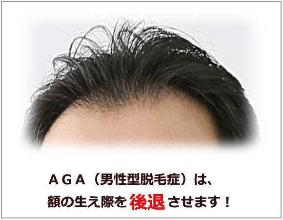 AGAは額の生え際を後退させる